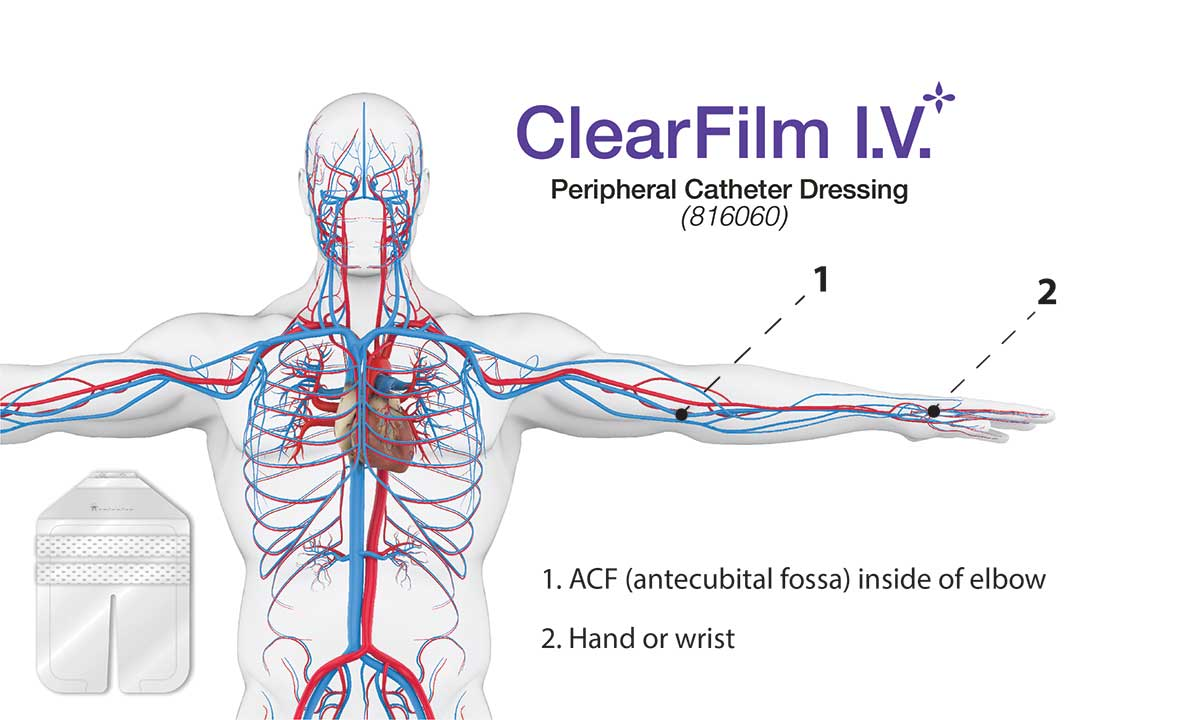 ClearFilm-IV - Peripheral Catheter Dressing