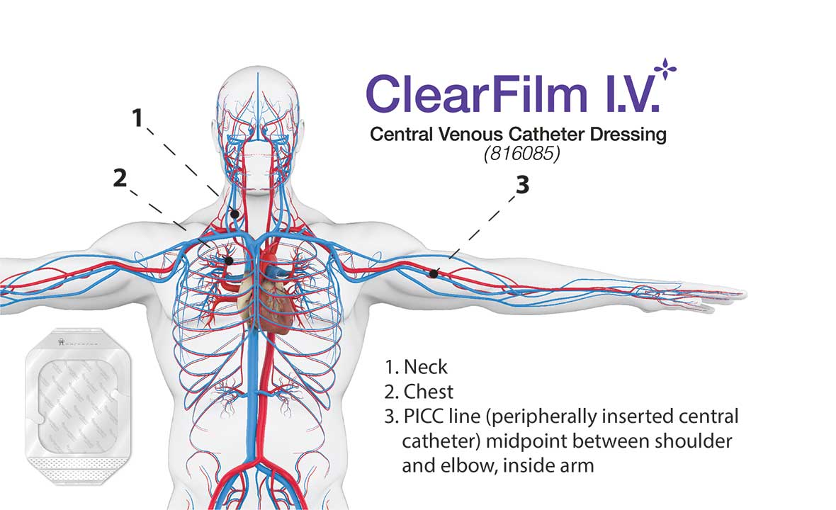 ClearFilm-IV - Central Venous Catheter Dressing